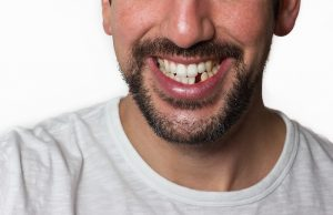 5 Tips and Tricks to Follow to Prevent Tooth Loss